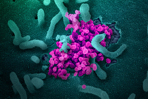 Scanning electron microscope image of SARS-CoV-2 (round magenta objects) emerging from the surface of cells cultured in the lab.